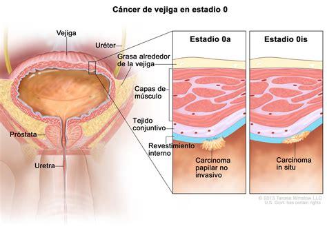 Tratamiento del cáncer de vejiga  PDQ –Versión para ...