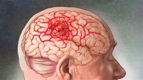 Tratamiento para el tumor cerebral