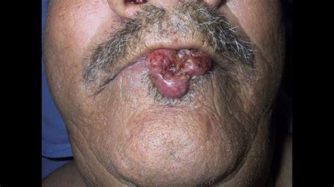 Tratamiento radical del cáncer de labio. Reconstrucción ...