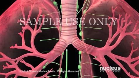 Tratamientos para el cáncer de pulmón   YouTube