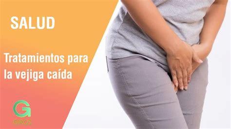 Tratamientos para la vejiga caída | Salud   YouTube en ...