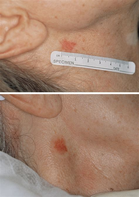 Treatment of Superficial Basal Cell Carcinoma and Squamous ...