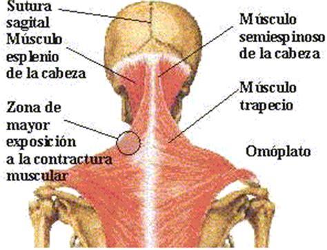 Triunfar con Aloe Vera: Contractura Muscular Localizada ...