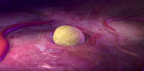 TU SALUD!!! Cáncer de ovario: A veces también sorprende a ...