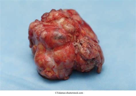 Tumor benigno de mama, síntomas, frecuente, tratamiento