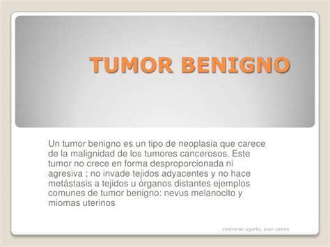 Tumor benigno