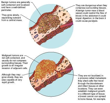Tumor   body, process, type, characteristics, cells ...