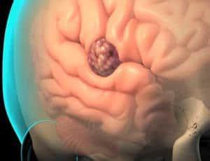 Tumor cerebral   ¿Qué es? causas, síntomas, tratamientos