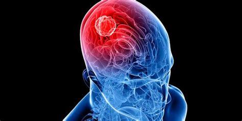 Tumor Cerebral. Síntomas de los tumores cerebrales ...