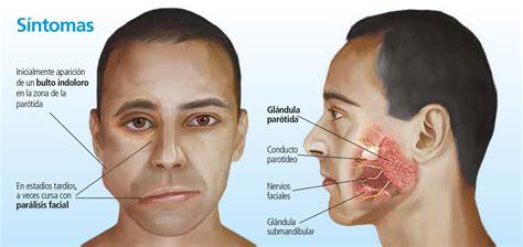 Tumor de parótida: poco frecuente y agresivo   Canal Salud ...