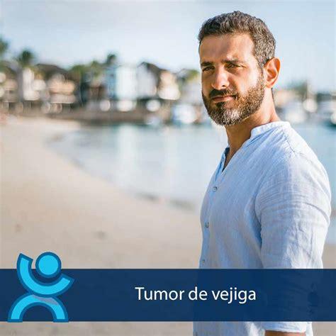 Tumor de vejiga | Dr. Bartolomé Lloret | Urólogo en Alicante