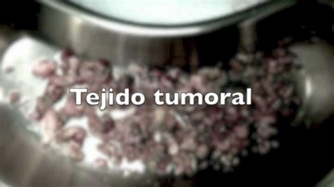 Tumor de Vejiga   YouTube