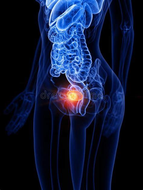 Tumor Del H?gado De Una Mujer Stock de ilustración ...