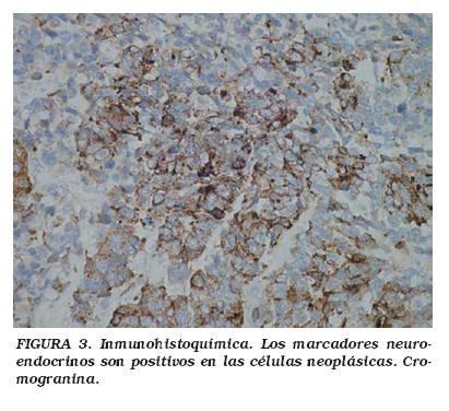 Tumor neuroendocrino vesical de célula pequeña: a ...