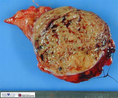 Tumor: Pancreatic Tumor