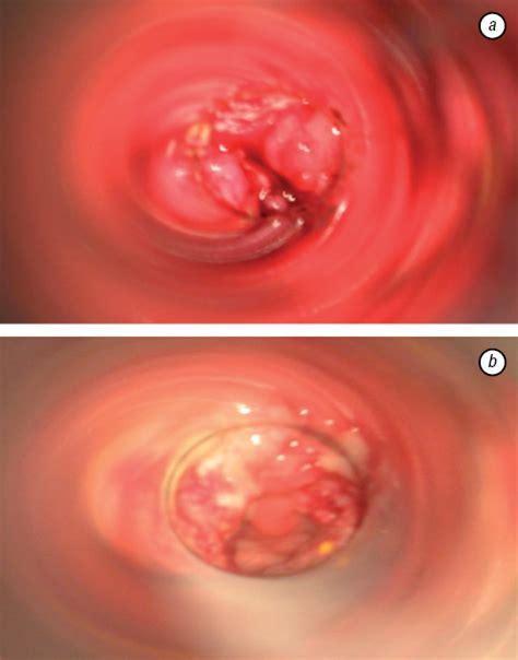 Tumor: Rectal Tumor Symptoms