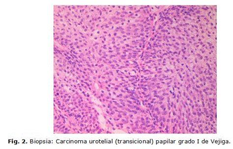 Tumor urotelial de vejiga en la infancia: reporte de un ...