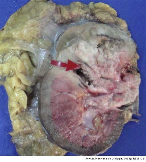 Tumor urotelial renal bilateral y tumor vesical urotelial ...