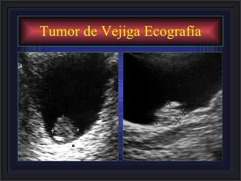Tumor Via Excretora Vejiga..imagenes , radiología