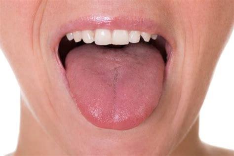 Tumore alla lingua: 5 campanelli d allarme — Vivere più sani