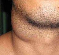 Tumores benignos de cabeza y cuello | Centro Médico Teknon