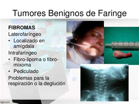 Tumores benignos de cabeza y cuello