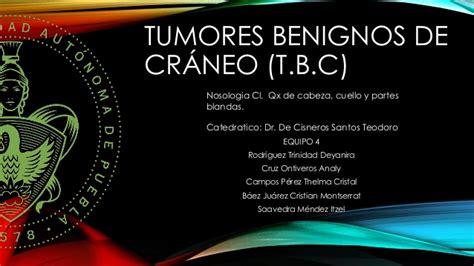 TUMORES BENIGNOS DE CRANEO
