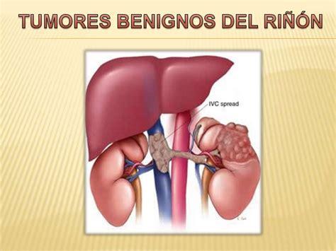 Tumores benignos del riñón