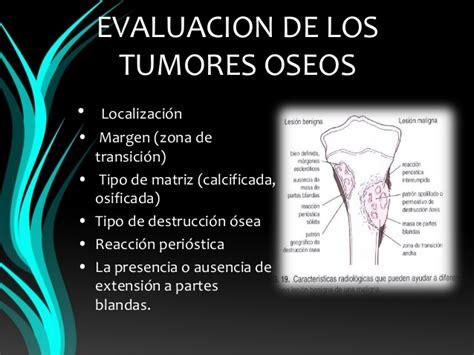 Tumores benignos hueso