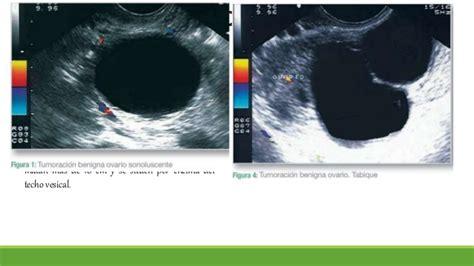 Tumores benignos ovario