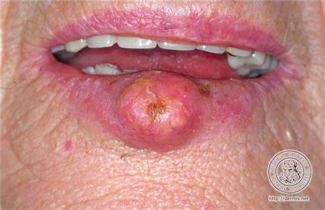 Tumores beningnos y malignos – dermatologia0716