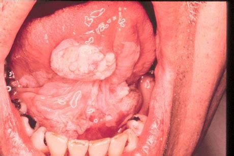 Tumores bucais   Distúrbios da boca e dos dentes   Manual ...