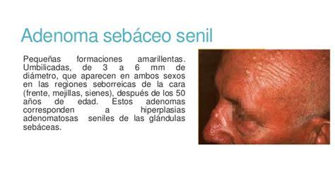 Tumores cutáneos benignos