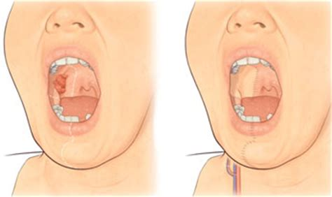 Tumores de cabeza y cuello | Instituto Bucofacial RP&M