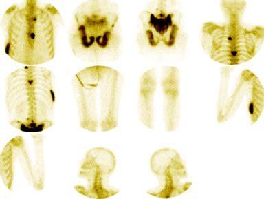 Tumores en estado avanzado y metástasis óseas   Bueno para ...