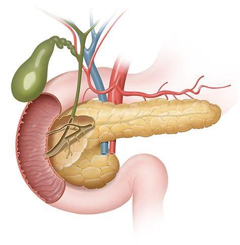 Tumores exocrinos de páncreas, qué son   Salud al día
