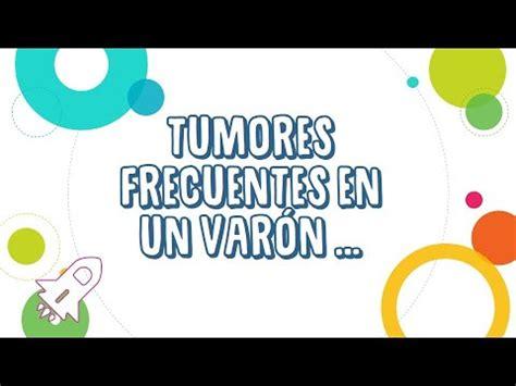 Tumores Frecuentes en el Hombre   YouTube