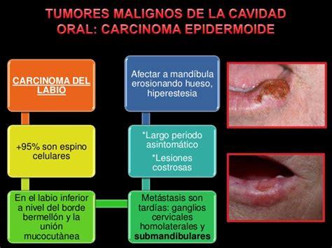 tumores malignos de la cavidad oral