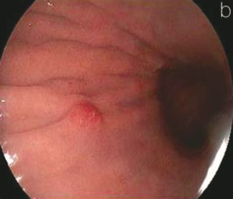 Tumores neuroendocrinos de colon y recto