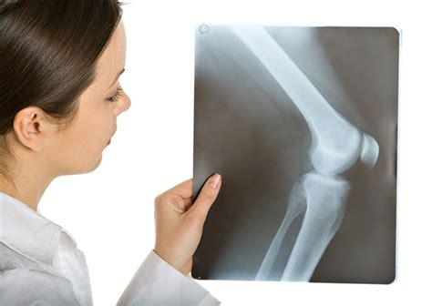 Tumores que destruyen el tejido óseo | Ciencia