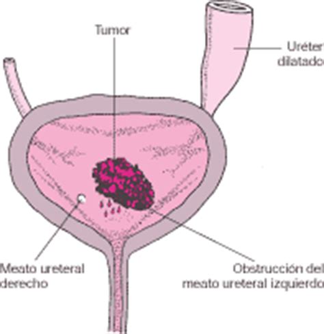 Tumores y cánceres de los riñones y de las vías urinarias
