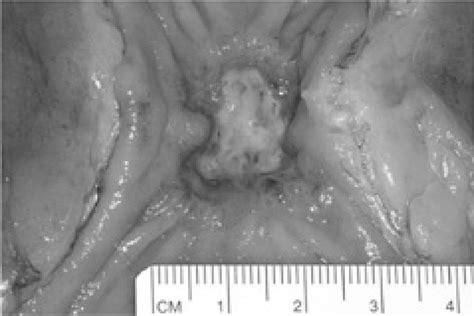 Úlcera de neoplasia de recto tras tratamiento ...