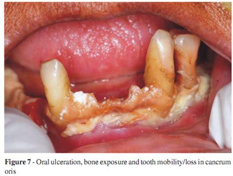 Ulceras orales.