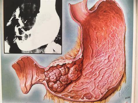 Un diagnóstico precoz del cáncer gástrico aumenta las ...