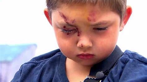 Un niño fue brutalmente golpeado por defender a su amigo ...
