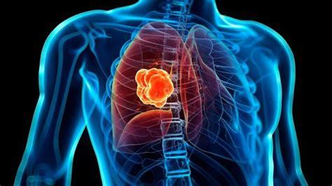 Un nuevo algoritmo de Google detecta tumores analizando ...