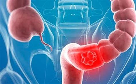 Un nuevo método de cribado de cáncer colon podría evitar ...