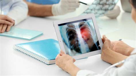 Un tratamiento contra el cáncer de pulmón reduce el riesgo ...