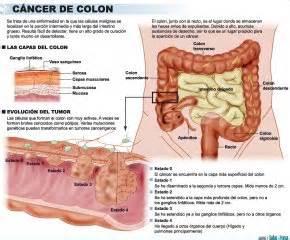 Una investigación revela una pista para combatir el cáncer ...