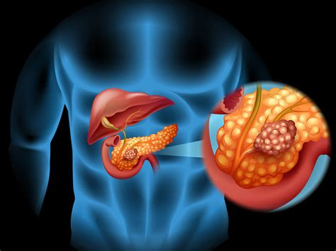 Updates in Pancreatic Cancer Guidelines, Treatment, Research